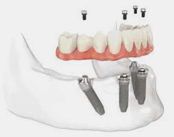 all-on-4-dental-implants-glasgow