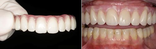 all on one dental implants