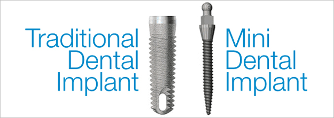 mini-dental-implant