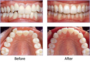 Invisalign aligners before and after