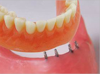 mini_midi-dental-implants-glasglow