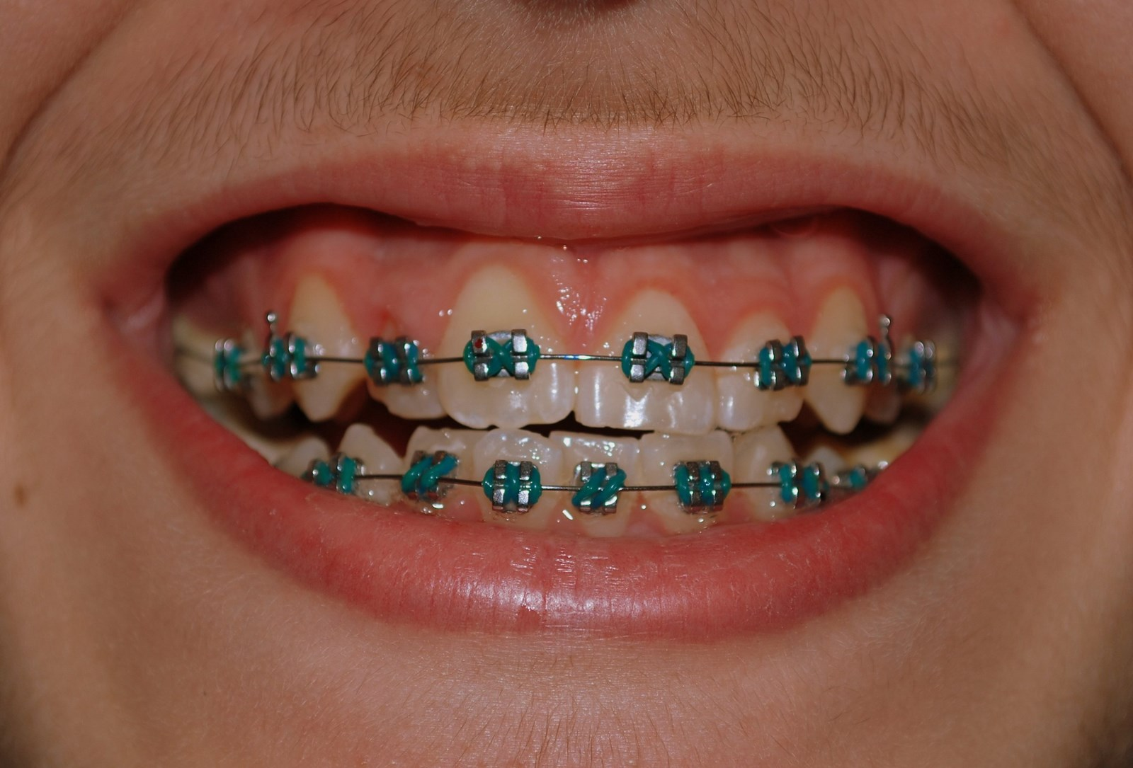 Different Color Braces