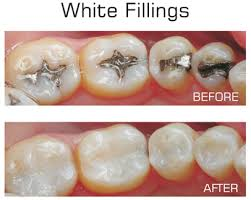 White filling before and after