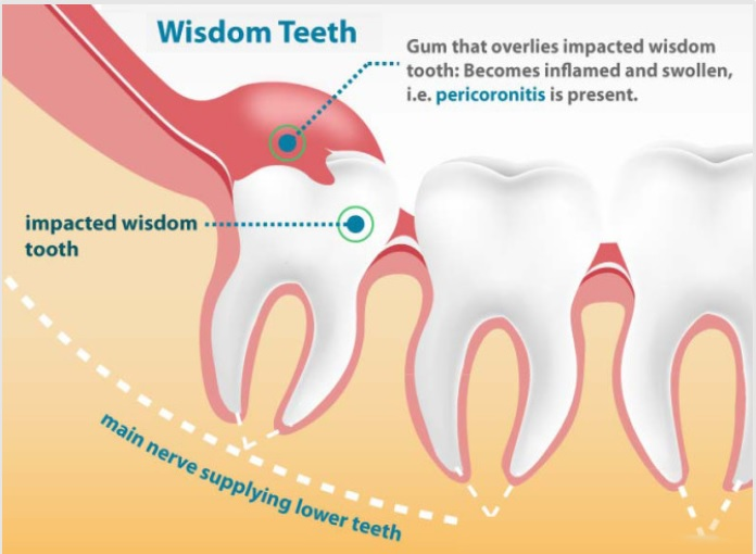 Wisdom tooth infection Glasgow
