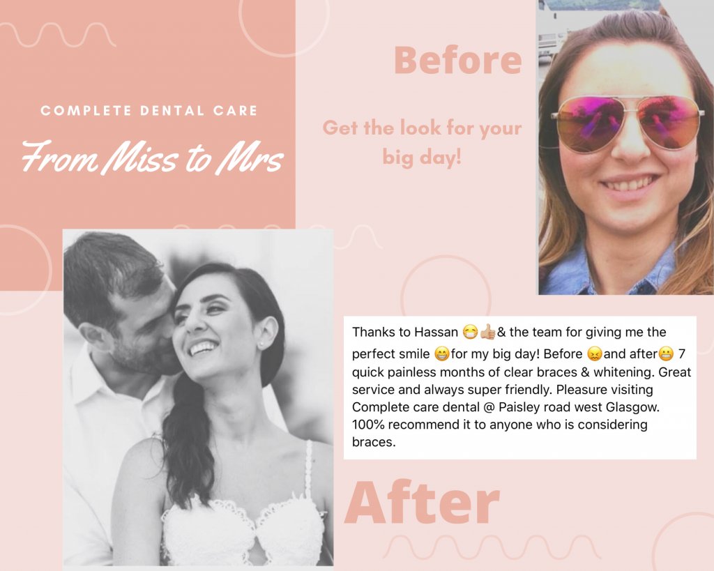 Wedding smile makeover